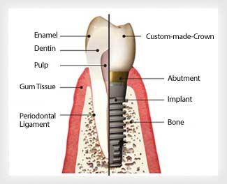 teeth-implant